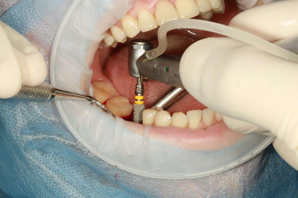 Implante sin hueso en pacientes que carecen de hueso maxilar